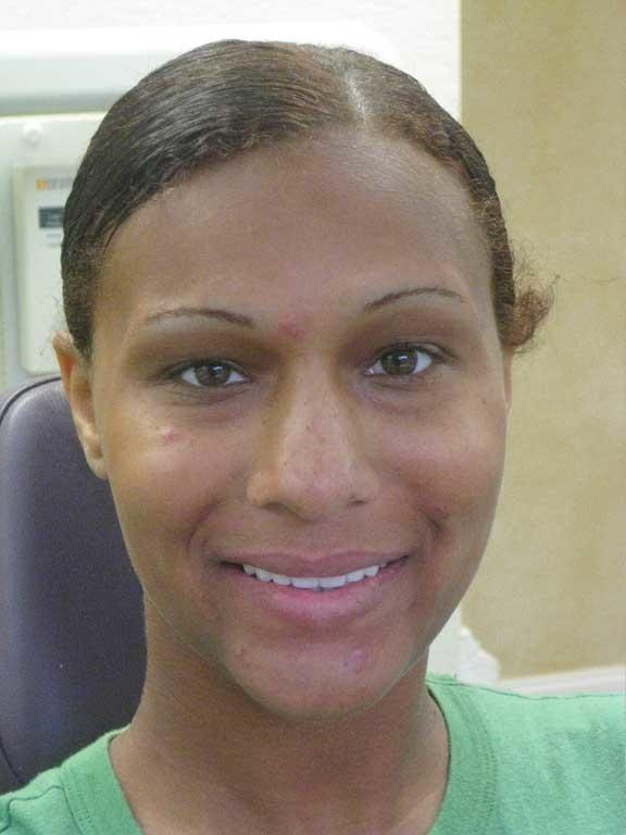 Cosmetic_Bridge_Patient.jpg