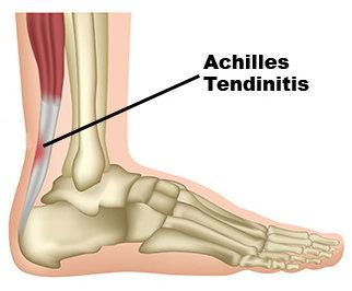 Avenel Podiatrist | Avenel Achilles Tendinitis |  | Family Podiatry Center |