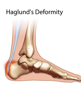 Avenel Podiatrist | Avenel Haglund's Deformity |  | Family Podiatry Center |