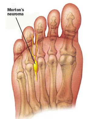 Avenel Podiatrist | Avenel Morton's Neuroma |  | Family Podiatry Center |