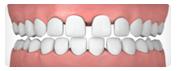 invi_gapped_teeth.png