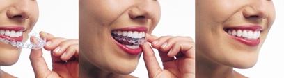 New York Dentist | New York dental Invisalign |  NY