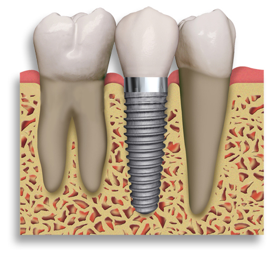 dental_implants_cost.png