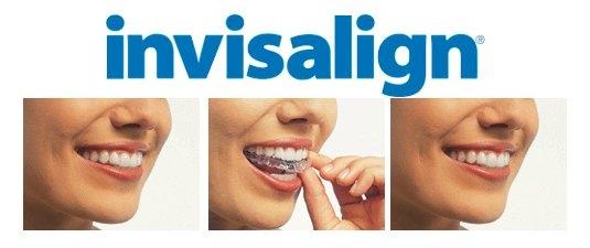 invisalign_with_logo.jpg