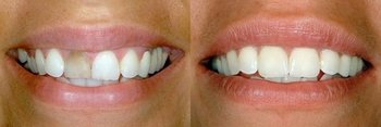 Cosmetic & General Dentistry of New City in New City NY