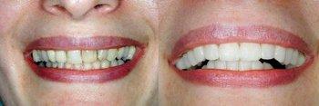 <p>Walker Dentistry</p> in Fishers IN