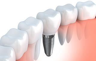 Dental_Implants_320x202.jpg
