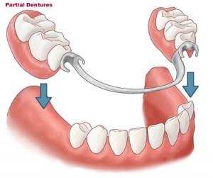 Partial_Dentures.jpg