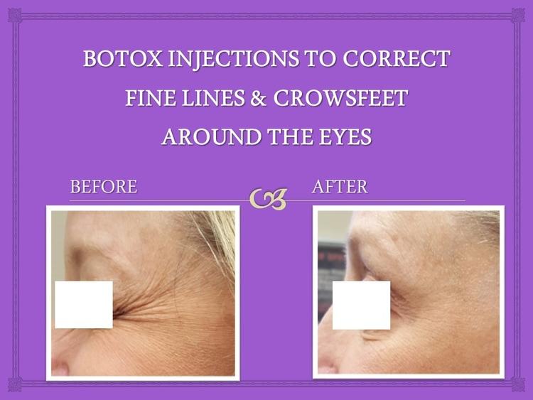 botox_inj.jpg
