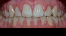 <p>Paradise Dental</p> in Melissa TX