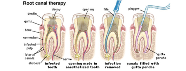 Root_canal_1.jpg