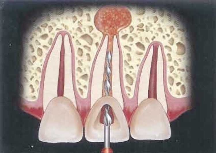 rotary_endodontics1.jpg