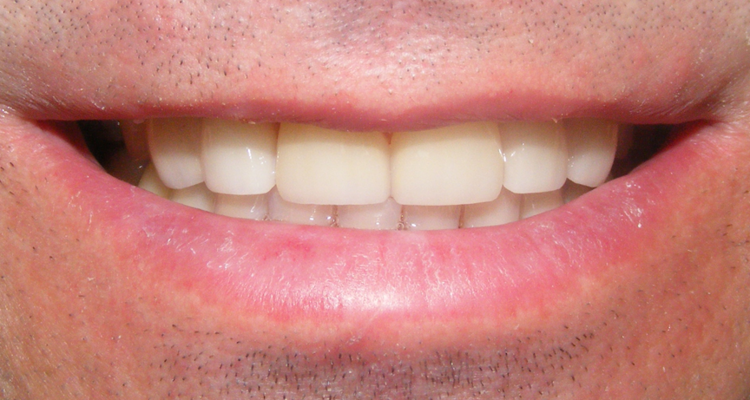veneers_after5.png