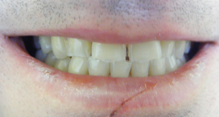veneers_before5.png