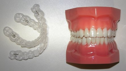 Scottsdale Dentist | Scottsdale dental Invisalign |  AZ