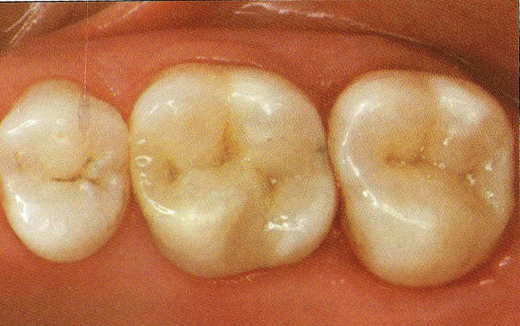 white_fillings_aft1.png