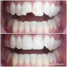 Your Smile Dental Wellness Center in McDonough GA