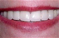 beautiful veneers aft.jpg