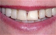 beautiful veneers bef.jpg