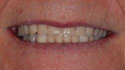36th Street Dental in St Louis Park MN