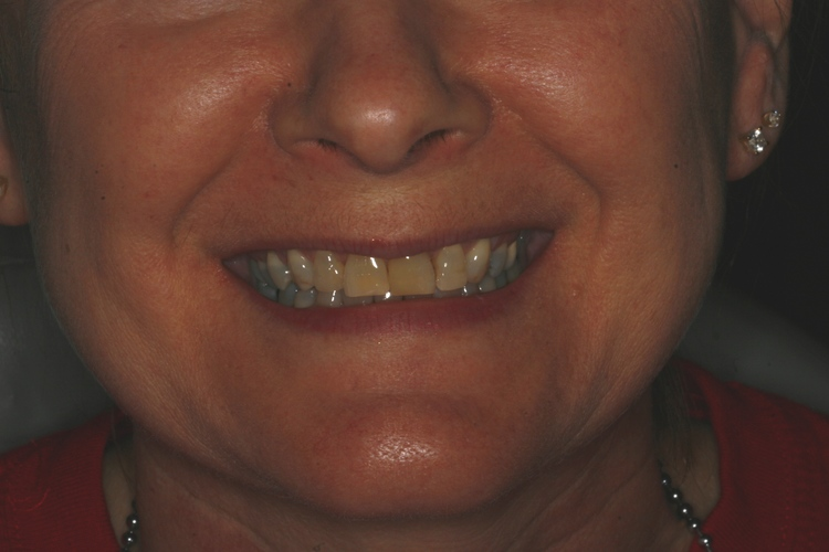 Family Dental Center in Morrilton AR
