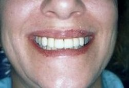 Alan S. Gold, DDS in Pittsfield MA