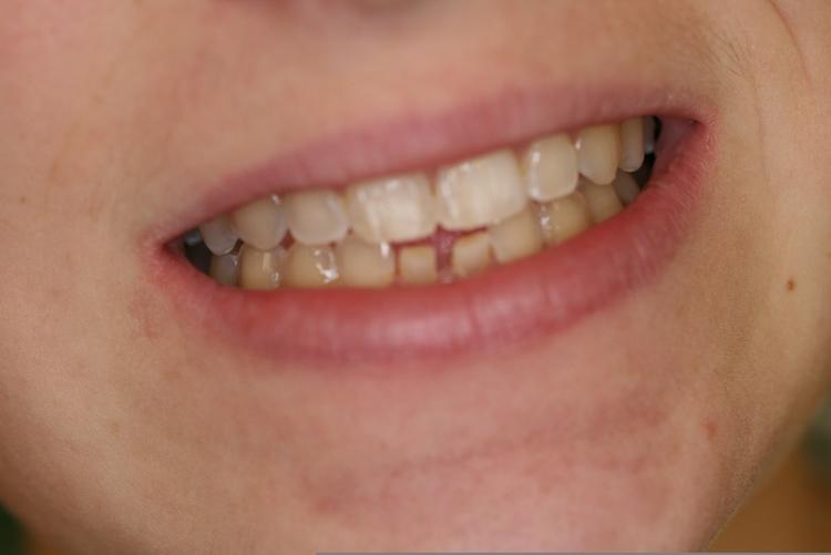 teeth_pics_003.JPG
