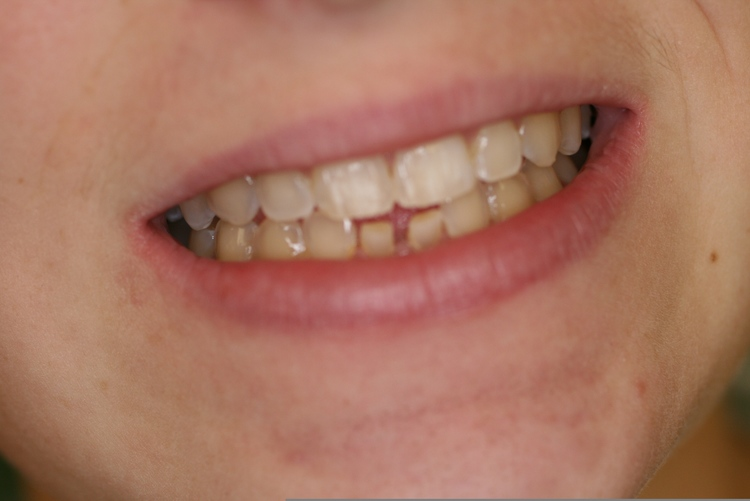 teeth_pics_003.JPG