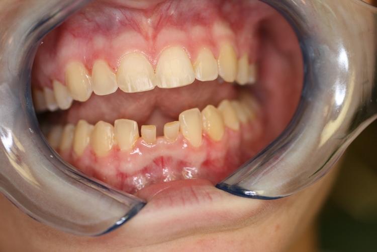 teeth_pics_004.JPG