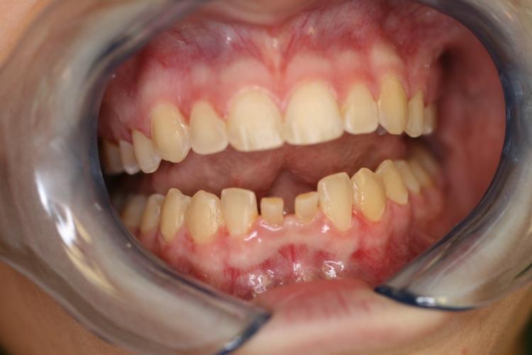teeth_pics_005.JPG