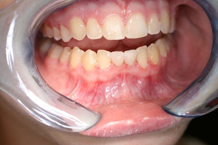 teeth_pics_007.JPG