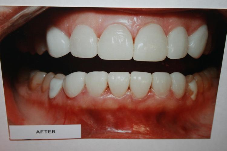 teeth_pics_111.JPG