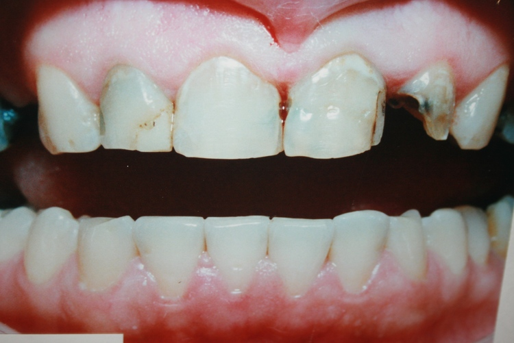 teeth_pics_112.JPG