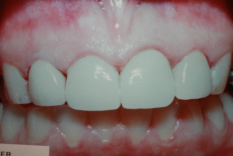 teeth_pics_113.JPG