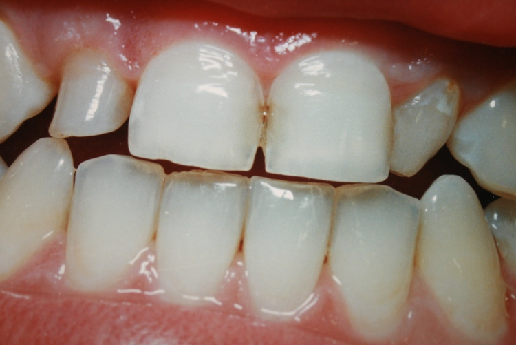 teeth_pics_115.JPG