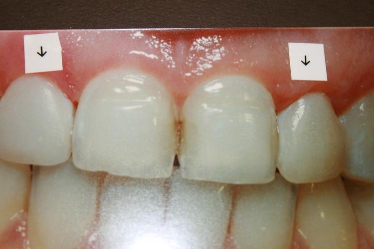 teeth_pics_117.JPG