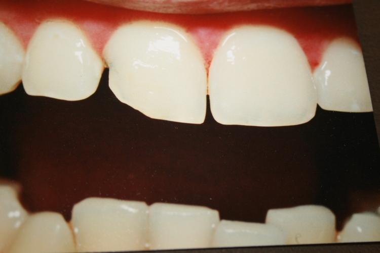 teeth_pics_118.JPG