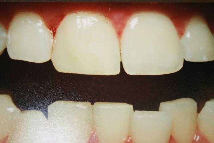teeth_pics_119.JPG