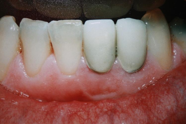 teeth_pics_126.JPG