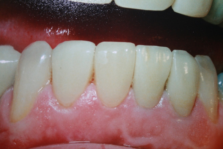 teeth_pics_127.JPG