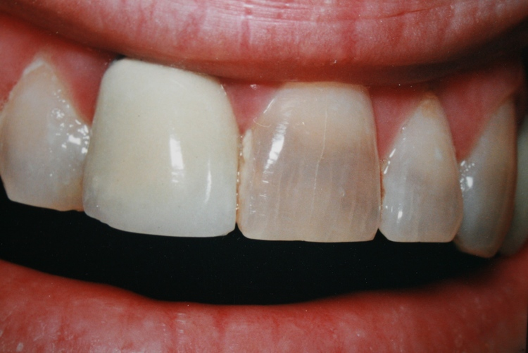 teeth_pics_128.JPG