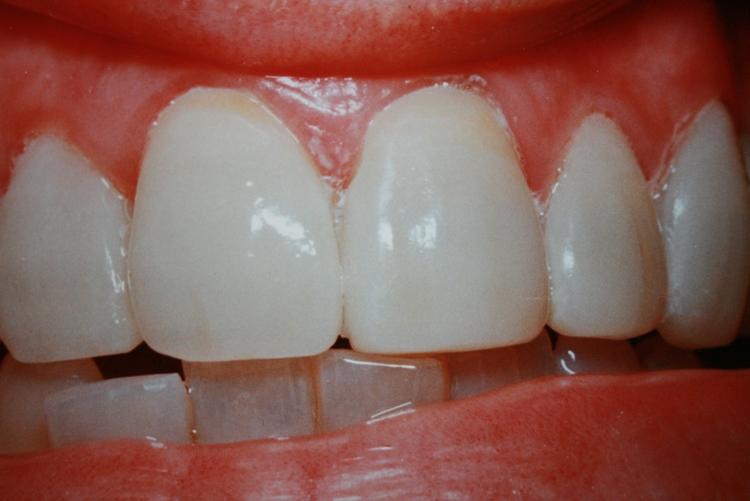 teeth_pics_129.JPG