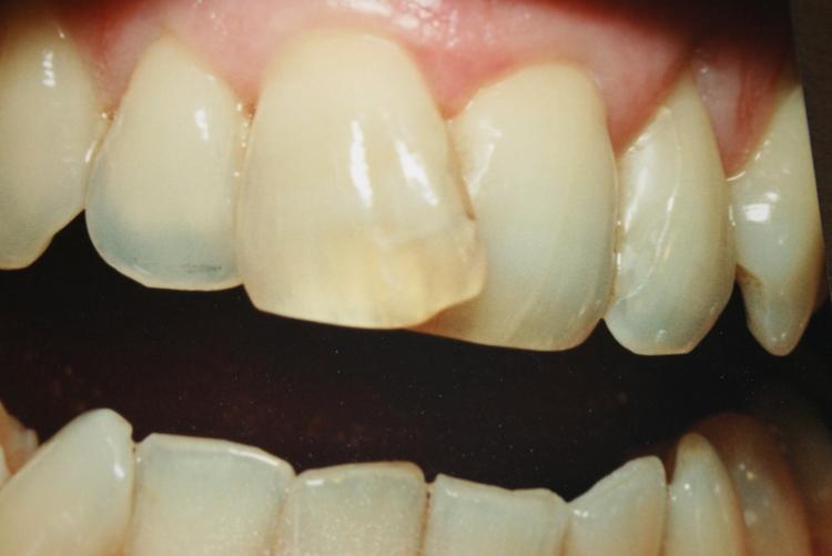 teeth_pics_130.JPG