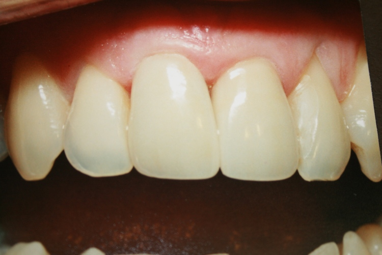teeth_pics_131.JPG