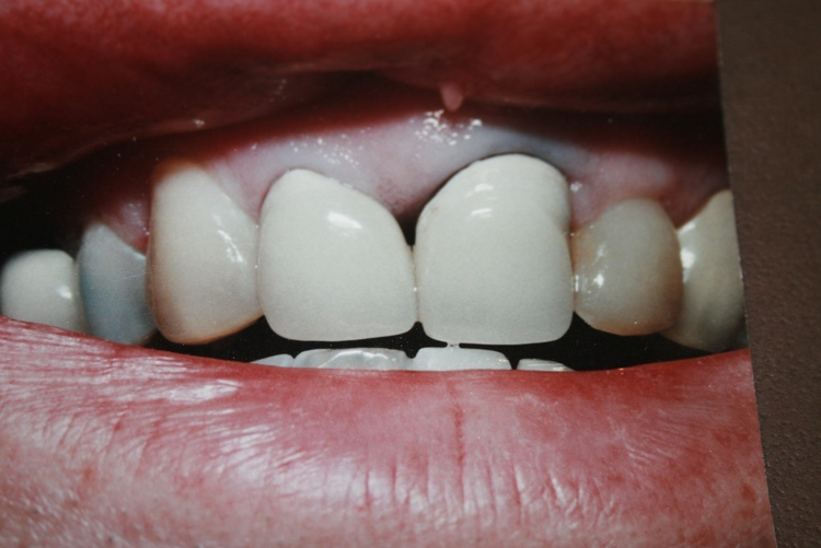 teeth_pics_134.JPG