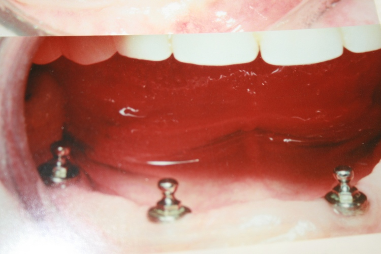 teeth_pics_144.JPG