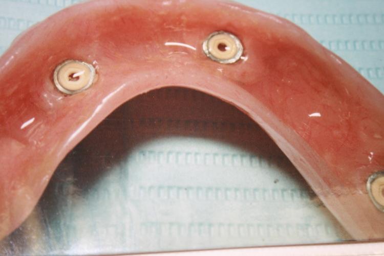 teeth_pics_145.JPG