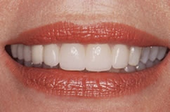 GumModification-After-02.jpg