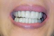 cs-missingteeth-after_180x120.jpg