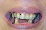 cs-missingteeth-before_180x120.jpg
